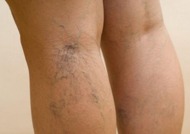 Варикозне розширення вен - проблема не тільки косметична, захворювання може стати передвісником утворення тромбів.
