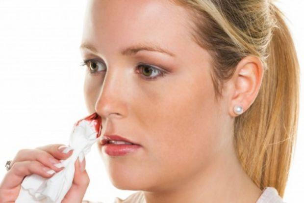 Носова кровотеча