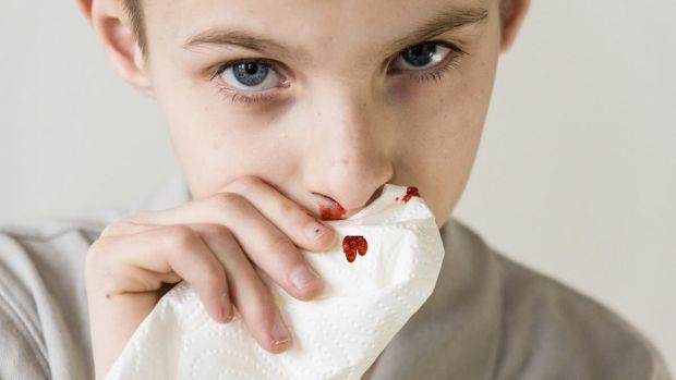 Пухлинні захворювання крові у дітей або лейкози можуть бути викликані мутаціями ДНК або виникли випадково. Експерти назвали кілька факторів, які підви