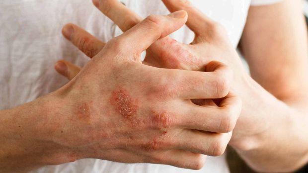 Алергія виникає через стрес