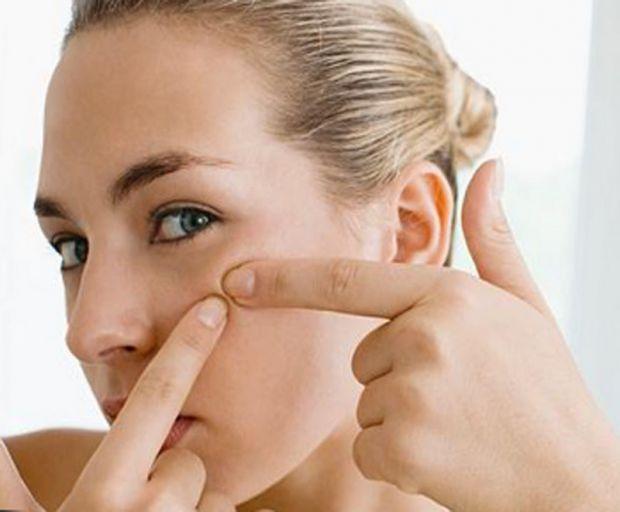 Засоби, які допоможуть вам очистити обличчя від чорних цяток.