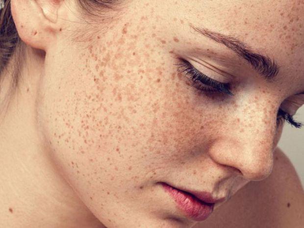 Дерматологи з Америки і Австралії повідомили про небезпечні родимі плями і веснянки, які регулярно з'являються на шкірі людини.