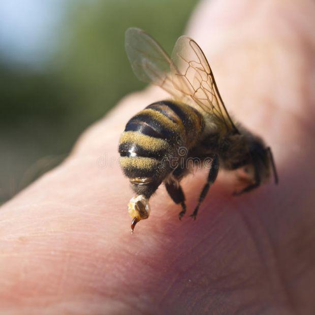 Якщо дитина алергік і її вкусила оса чи інша комаха, то потрібно надати першу допомогу, адже наслідки можуть бути фатальними.