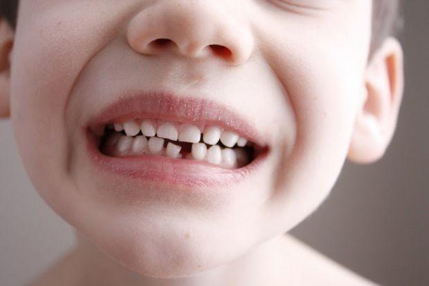 Американські медики виявили дивовижний зв'язок: виявляється, серед дітей з тонкою, пошкодженою зубною емаллю частіше зустрічається синдром дефіциту ув