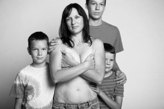 Джейд Білл - фотограф - вирішила створити унікальну та провокаційну фотосесію жінок після пологів: зі всіма розтяжками, недосконалостями. На її думку,