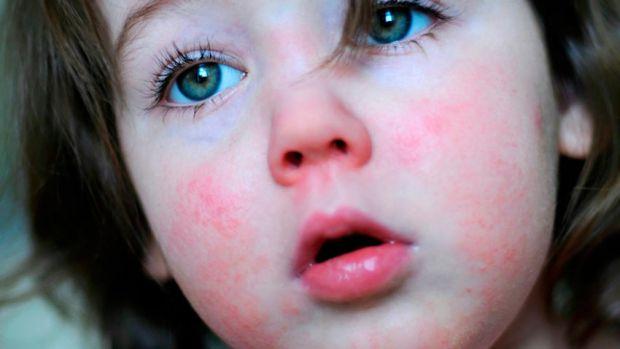 Скарлатина –захворювання, яке передається повітряно-крапельним і тактильним шляхом. Найчастіше хворіють діти у віці від 2-х до 10-ти років.