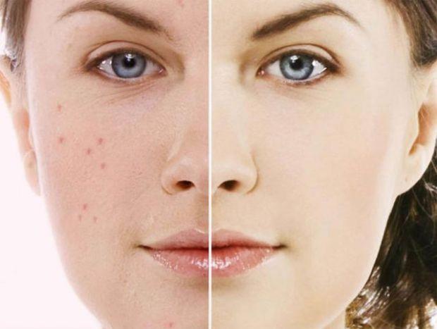Косметичні засоби не тільки можуть вас робити красиви, але зашкоджувати вашій красі, а особливо шкірі.