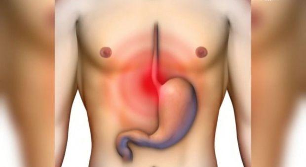 Не варто ігнорувати часту печію, так як вона може свідчити про рак шлунка. Крім того, ризик цієї небезпечної хвороби збільшує велика кількість солоних