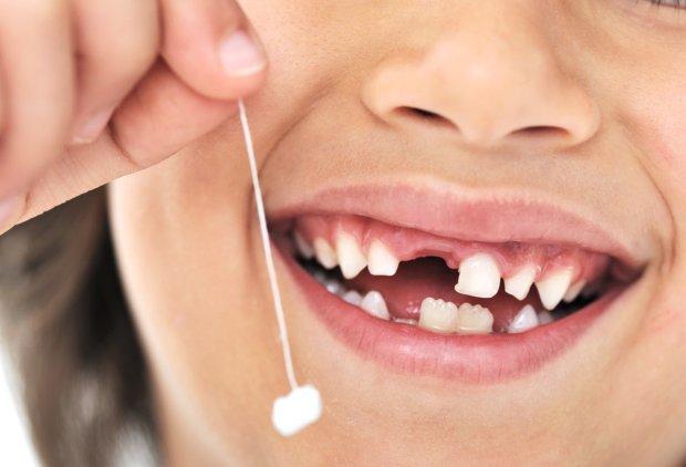 Стан зубів може сказати більше, ніж ви думаєте