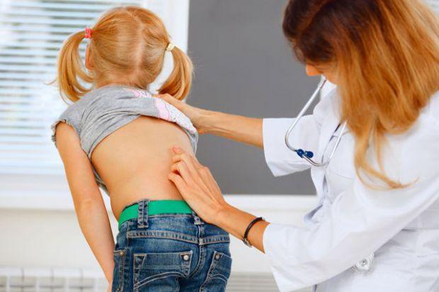 Сколіоз початкових стадій виникає майже безсимптомно, але діагностувати його все-таки можна без допомоги лікаря.