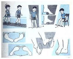 Чи відомо вам, шановні батьки, що плоскостопість можна подолати, коли ваш нащадок ще переживає у дитячому віці.