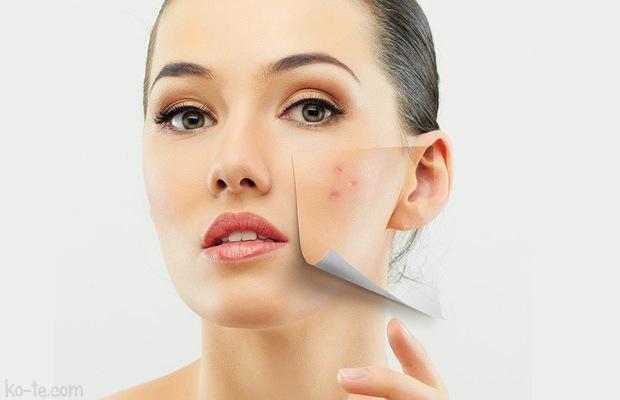 Ніхто не застрахований від прищів і вугрів, але якщо вони з'явилися, значить  ви мало уваги приділяєте своїй шкірі.