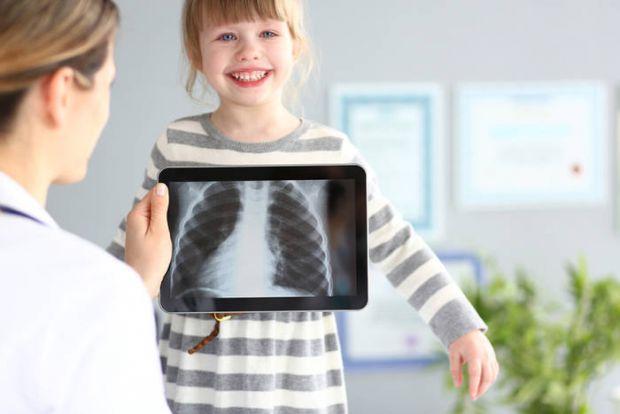 Самостійно вести дитину на рентген і робити знімок легенів «на всякий випадок» не варто. Врахуйте, що це не аскорбінка, а цілком реальне радіаційне оп