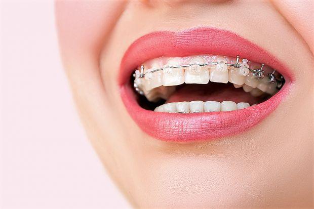 Багато представниць прекрасної половини людства комплексують через свою усмішку, а точніше – через стан зубів. Асиметрія, неправильний прикус змушують