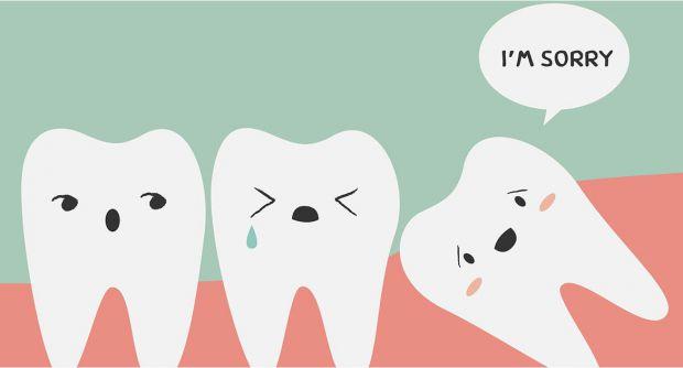 Ви думаєте, чи потрібно видаляти зуби мудрості - читайте у матеріалі.