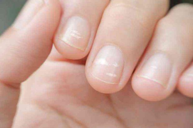 Зміна нігтьової пластини, при якій з'являються білі плями або смужки, називаються лейконіхія. Це явище допоможе вчасно діагностувати негаразди в орган