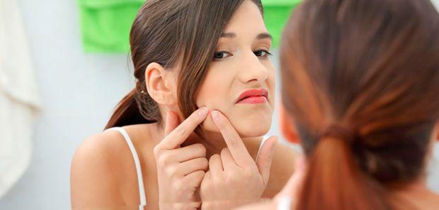 Часто у підлітковому віці на обличчі виступають прищі. Що з ними робити?