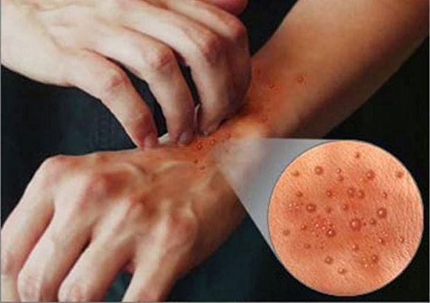 Дерматит, вызывает раздражение, является сухим, повреждает кожу и другое. Это обычно вызвано мытьем рук слишком часто, но могут также быть виноваты в