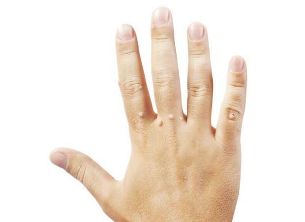 Не часто миєте руки або просто в організмі, якийсь вірус, що викликає висип бородавок - тоді можете їх позбутися за допомого народних засобів.