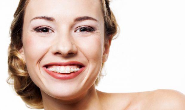 Існує думка про те, що після зняття брекет-систем на зубах залишаються плями, які потім нічим не видалити. Під час носіння брекетів, які кріпляться бе