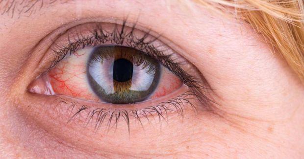 Поради, як легко позбутися в домашніх умовах почервоніння очей.