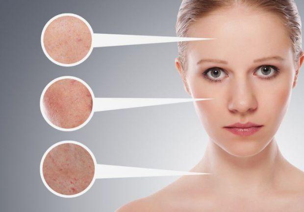 За станом шкіри можна сказати про те, чи все гаразд з організмом, або, навпаки, чим людина хворіє.