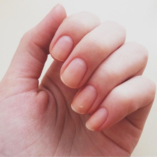 Американські вчені з Університету Флориди встановили, що нігті можуть служити індикатором стану здоров'я людини.