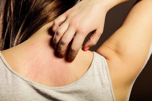 Міжнародна команда вчених після клінічних випробувань заявила: стрес провокує не тільки мозок, але і шкіру людини на відповідну реакцію. Гормони корти