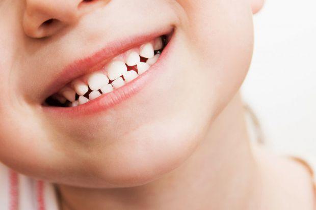 Карієс - проблема не лише дорослих і тих діток, які вже мають постійні зуби, з молочними він теж