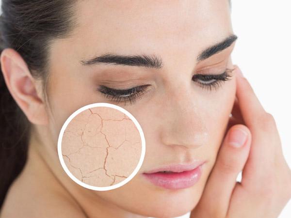 Проблеми зі шкірою бувають через різні фактори. Якщо організм зневодненний - то і шкіра буде сухою і некрасивою.