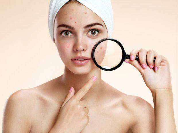 Ви відвідуєте косметолога, робите різноманітні маски, скраби для обличчя, а прищі не проходять, тоді варто задуматися, адже проблема скоріш за все кри