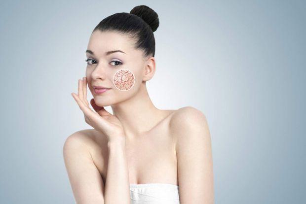 У деяких людей з'являються судинні зірочки в області носа, щок, зовні схожі на капілярну сіточку, яка проступає крізь шкіру у вигляді своєрідної павут