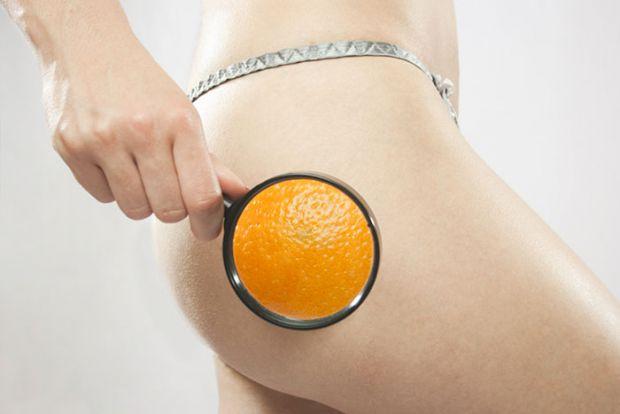 Використання лимонів допоможуть побороти целюліт.