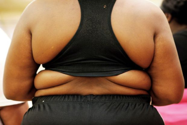 Ізраїльські вчені з'ясували, що у пацієнтів з ожирінням, які перенесли операцію по зниженню ваги, ризик передчасної смерті нижчий, ніж у тих, хто вдав