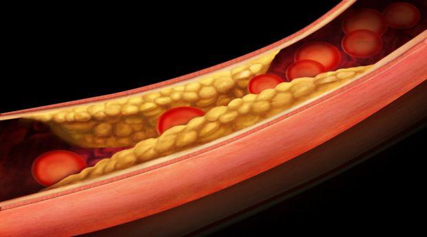 5468_ateroskleroz.jpg (24.72 Kb)