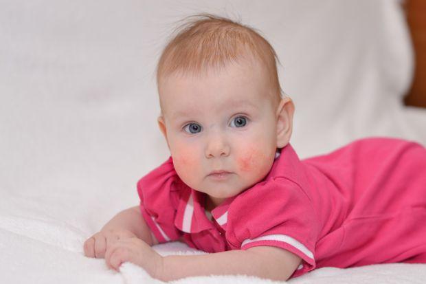 Британський дієтолог Карен Фішер не з чуток знає про те, що таке дитяча екзема: її донька Ава пройшла через довгу битву з запаленою шкірою. Через деся