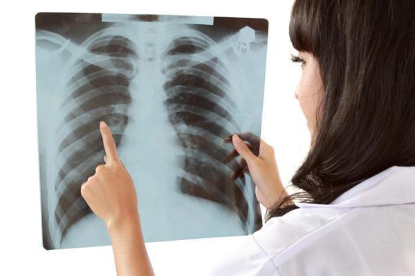 Рентген грудної клітки дозволяє своєчасно виявити небезпечні недуги легенів. А чи можна робити флюорографію мамі, що годує?