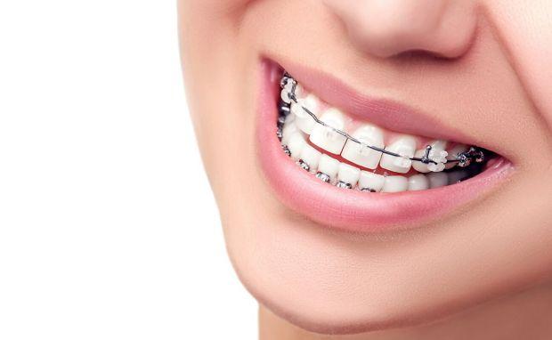 Довольно часто в нашей стране люди не слишком интересуются своим здоровьем. Особенно здесь дело идет о стоматологии, где у людей старше тридцати лет д