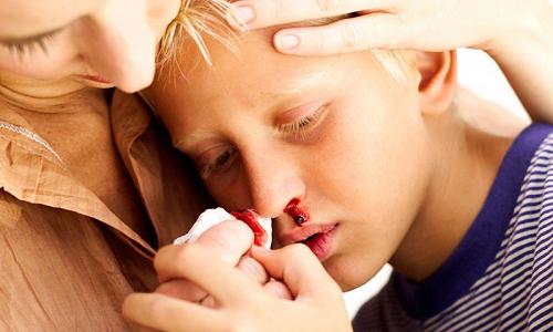 У батьків одразу з'являється стрес, коли вони бачать, що у дитини тече кров з носа. Зразу думають, що дитина серйозно хвора. Звичайно, потрібно приділ