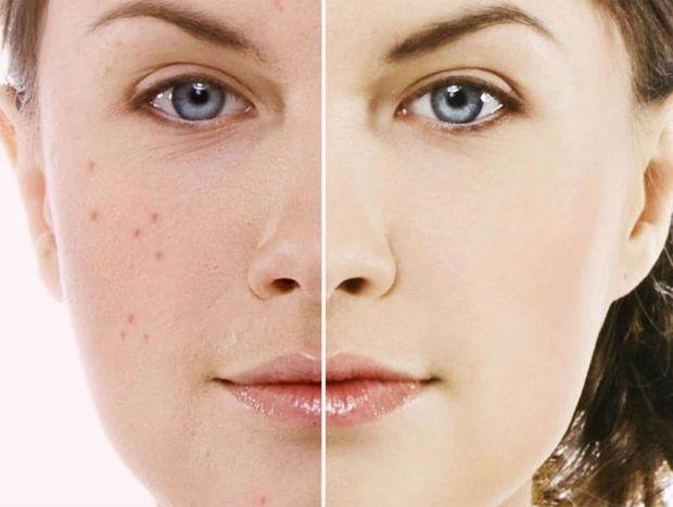 Американські науковці, які мають інформацію про взаємозв'язок споживаної їжі і стану шкіри, назвали ряд продуктів, що сприяють появі вугрової висипки.