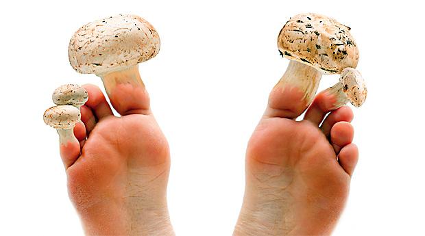 Народні засоби допоможуть позбутися грибка нігтів.