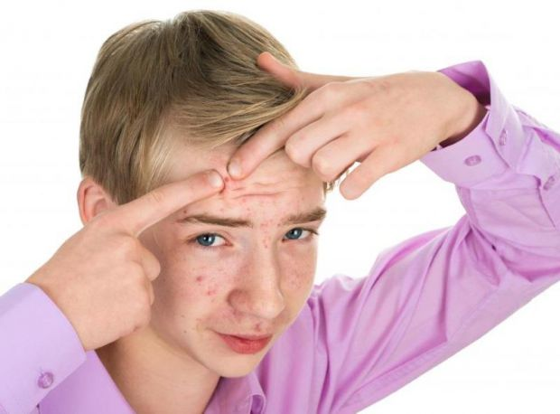 Вчені з Університету Каліфорнії розповіли, чому деякі підлітки страждають від постійних висипань, а інші не мають проблем зі шкірою.