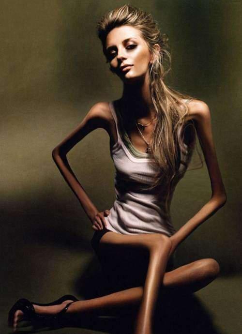Анорексія - симптом, що полягає в повній відсутності апетиту за об'єктивної потреби організму в харчуванні, який супроводжує більшість метаболічних за