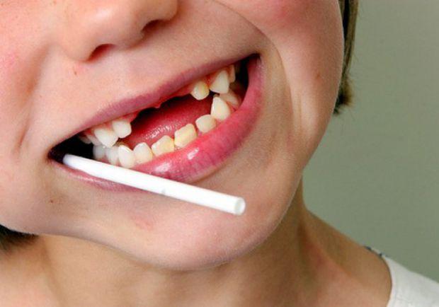 Дуже часто батьки вирішують, що лікування молочних зубів - зайвий клопіт і витрати, адже мине час і виростуть постійні зубки, тому навіщо мучити себе