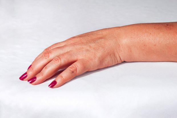 Про які хвороби можуть розповісти руки - читайте наш матеріал.