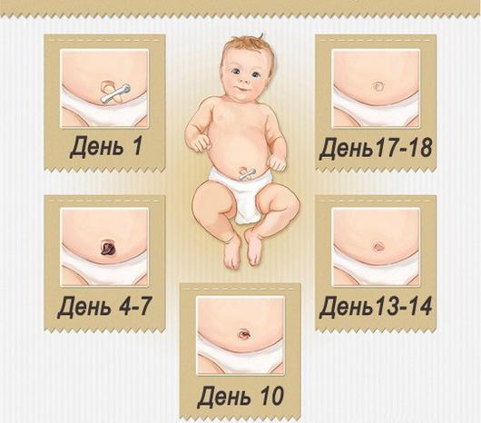 7 фактів про пупок новонародженого, які варто знати.