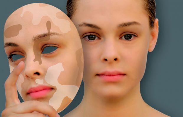 Пігментація - це є фарбування тканин, наприклад, шкіри, волосся, обумовлене наявністю в них пігменту. За колір шкіри відповідає такий пігмент, як мела