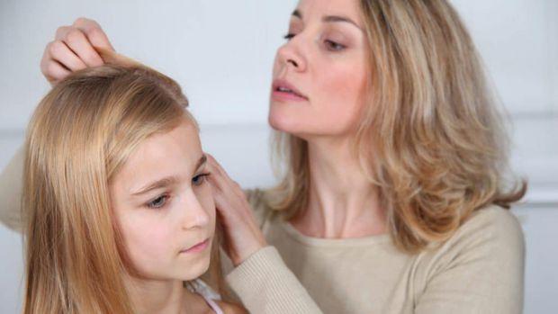 Надмірне випадіння волосся у дитини може бути викликане багатьма причинами причинами, декілька ми навели у матеріалі.