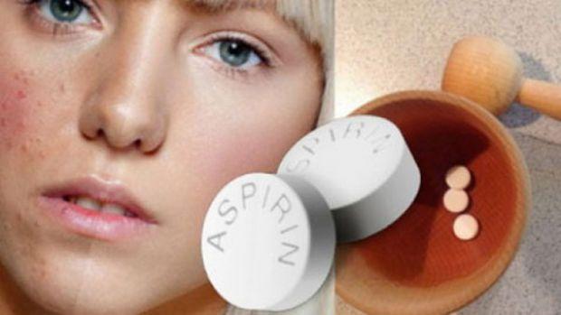 Аспірин використовують не тільки проти болю та зниження температури, але й для іншого, наприклад, позбутися акне.