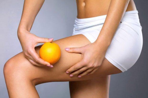 Целюліт являє собою косметичну проблему, що виражається в накопиченні і неправильному розподілі жирової тканини під шкірою.